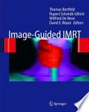 Image-Guided IMRT