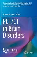 PET CT in Brain Disorders