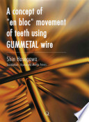 A Concept of En Bloc Movement of Teeth Using Gummetal Wire