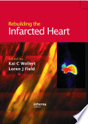 Rebuilding The Infarcted Heart Book PDF