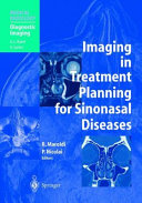 Imaging in Treatment Planning for Sinonasal Diseases