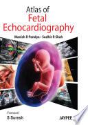 Atlas of Fetal Echocardiography Book