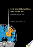 Deep Brain Stimulation Programming