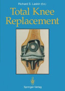 Total Knee Replacement Book
