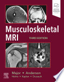 Musculoskeletal MRI E-Book