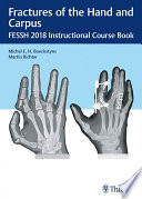 Fractures of the Hand and Carpus