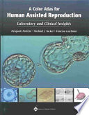 A Color Atlas For Human Assisted Reproduction Book PDF