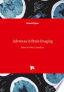Advances in Brain Imaging