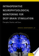 Intraoperative Neurophysiological Monitoring for Deep Brain Stimulation
