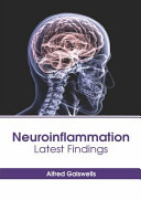Neuroinflammation  Latest Findings