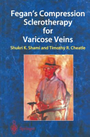 Fegan s Compression Sclerotherapy for Varicose Veins