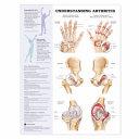 Arthritis Joint Inflammation Anatomical Chart