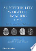 Susceptibility Weighted Imaging in MRI Book
