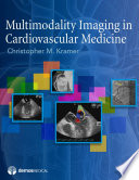Multimodality Imaging in Cardiovascular Medicine Book