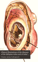 Clinical Illustrations of the Diseases of the Fallopian Tubes and of Tubal Gestation
