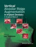 Vertical Alveolar Ridge Augmentation in Implant Dentistry Pdf/ePub eBook