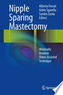 Nipple Sparing Mastectomy Book PDF