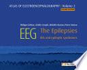 EEG   The Epilepsies