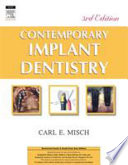 Contemporary Implant Dentistry (3Nd Edition)