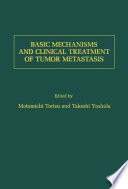 Basic Mechanisms and Clinical Treatment of Tumor Metastasis