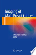 Imaging Of Male Breast Cancer Book PDF
