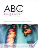 ABC of Lung Cancer