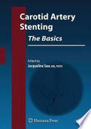 Carotid Artery Stenting  The Basics