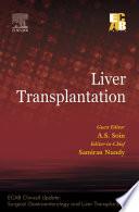 Liver Transplantation   ECAB