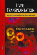Liver Transplantation Book PDF