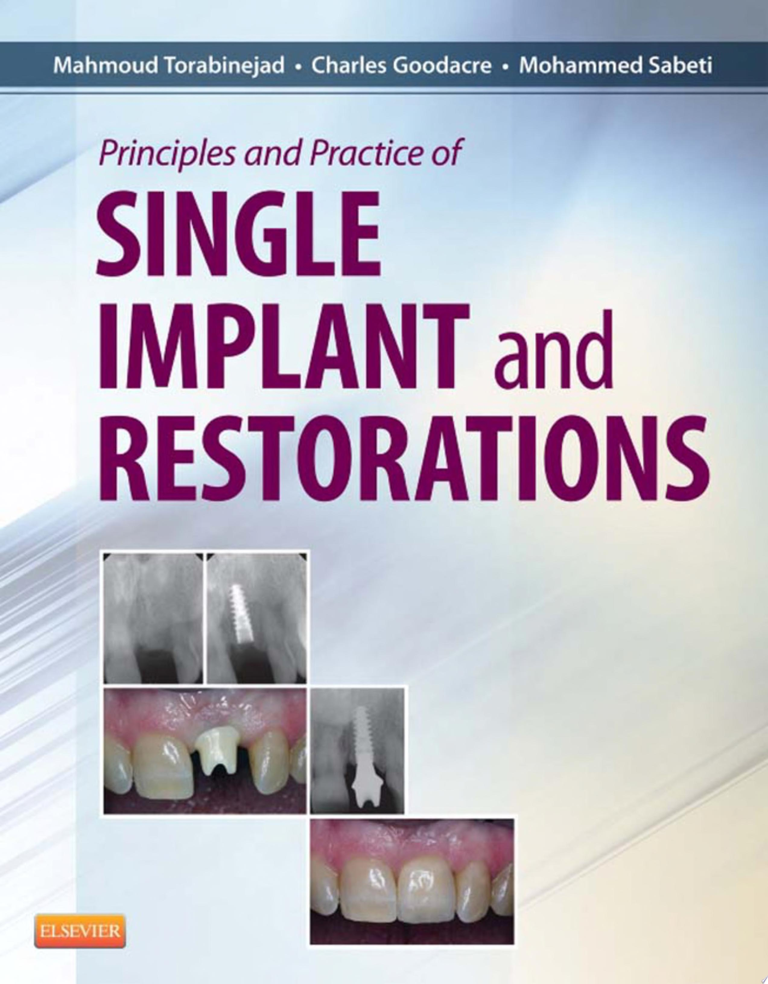 Principles and Practice of Single Implant and Restoration