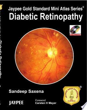 Download Jaypee Gold Standard Mini Atlas Series: Diabetic Retinopathy Free Books - Dlebooks.net