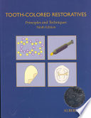 Tooth colored Restoratives