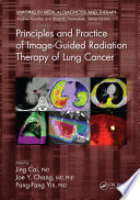 Principles and Practice of Image Guided Radiation Therapy of Lung Cancer Book
