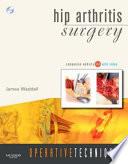 Hip Arthritis Surgery Book