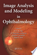 Image Analysis and Modeling in Ophthalmology Book