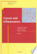 Cancer And Inflammation Book PDF