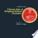 Clinical Atlas of Peripheral Retinal Disorders Book