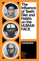 The Influence of Teeth  Diet  and Habits on the Human Face