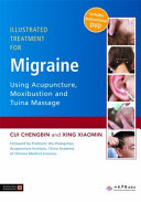 Illustrated Treatment for Migraine Using Acupuncture  Moxibustion and Tuina Massage