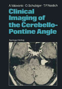 Clinical Imaging of the Cerebello Pontine Angle
