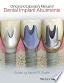 Clinical and Laboratory Manual of Dental Implant Abutments Book