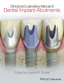 Clinical and Laboratory Manual of Dental Implant Abutments Pdf/ePub eBook