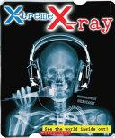 X treme X ray