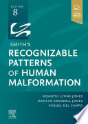 Smith s Recognizable Patterns of Human Malformation   E Book