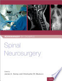Spinal Neurosurgery