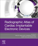 Radiographic Atlas of Cardiac Implantable Electronic Devices