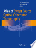 Atlas Of Swept Source Optical Coherence Tomography Book PDF