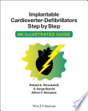 Implantable Cardioverter   Defibrillators Step by Step Book