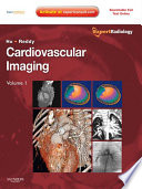 Cardiovascular Imaging E-Book