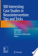 100 Interesting Case Studies in Neurointervention: Tips and Tricks